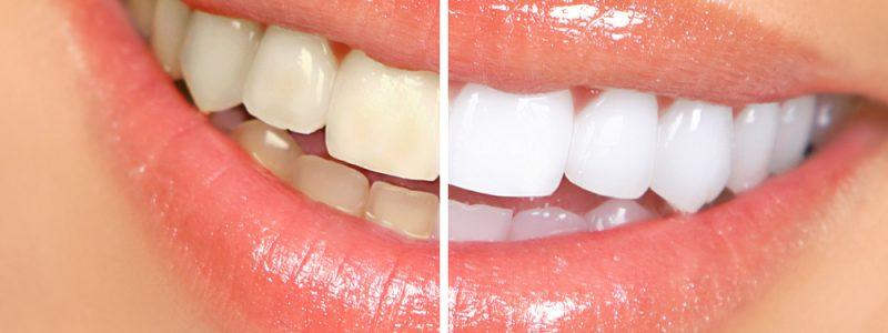 teeth-whitening-afbeelding